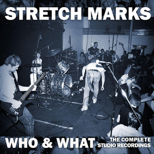 Stretch marks who and what 700x700